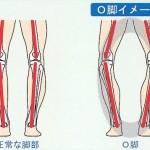 O脚の状態はこんな感じです