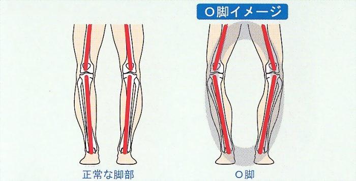 高齢の変形性膝関節症の歩行困難を整体
