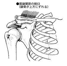 肩鎖関節亜脱臼