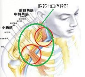 胸郭出口症候群の整体