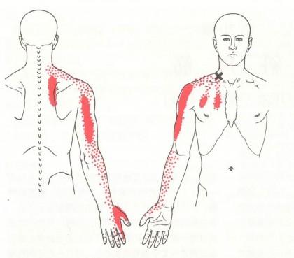 頚肩腕症候群の症状の範囲