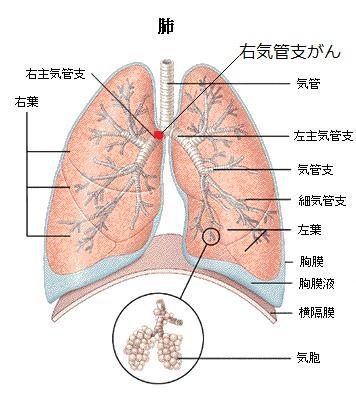 右気管支がん