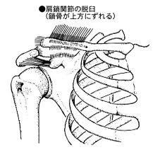肩こり 胸郭出口症候群の整体